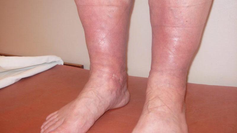 флебит нижних конечностей симптомы и лечение фото