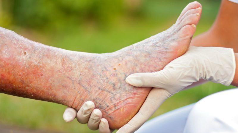 воспаление вен нижних конечностей лечение