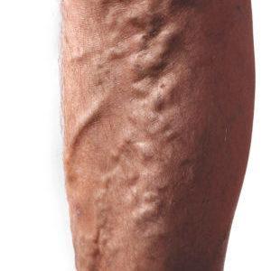 Что можно а чего нельзя делать при варикозе вен на ногах