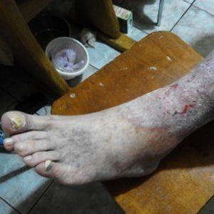лечение красных пятен на ногах при варикозе