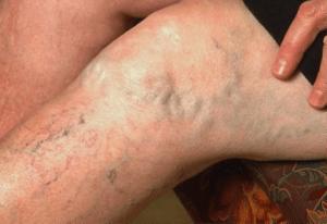 рецепт настойки из каланхоэ от варикоза
