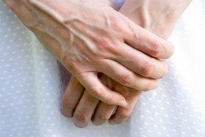 фото cимптомов варикоза на руках
