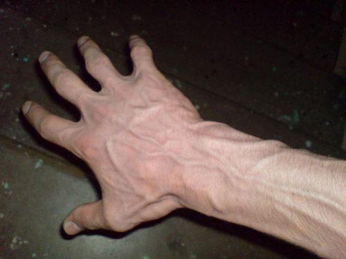 узелки на венах рук