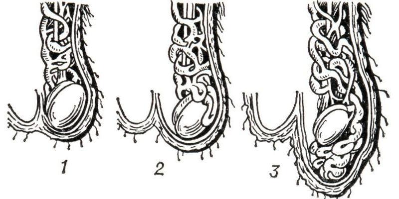 варикоцеле 3 степени