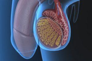 лечение варикоцеле 3 степени