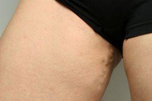 лечение варикоза при грудном вскармливании