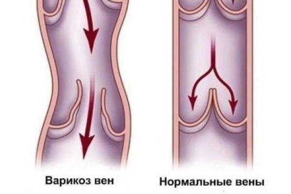 варикоз во влагалище
