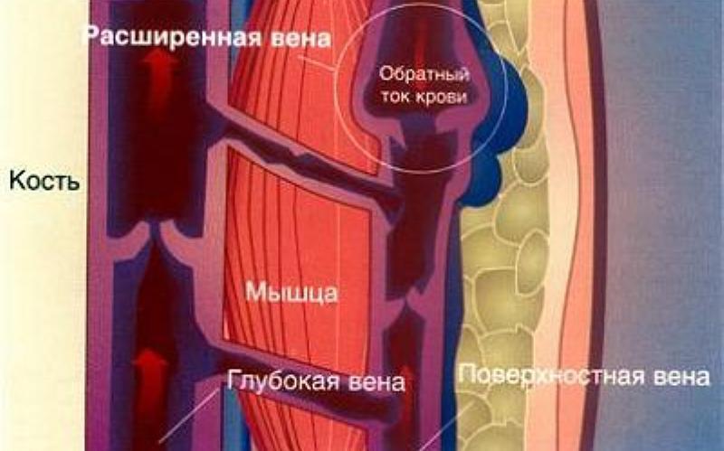 аспирин при варикозном расширении вен нижних конечностей