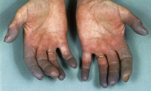 болезнь бюргера симптомы и лечение