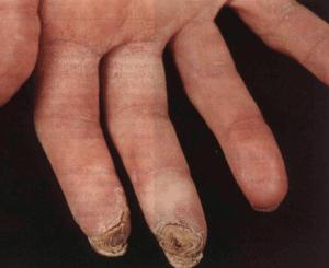 Болезнь Бюргера (облитерирующий тромбангиит нижних конечностей ...