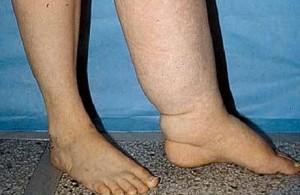 чем и как лечить лимфостаз нижних конечностей