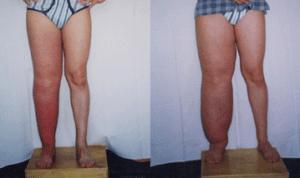 что такое лимфостаз нижних конечностей и как его лечить