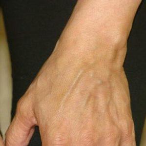 флебит на руке лечение