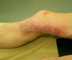 лечение флеботромбоза глубоких вен нижних конечностей