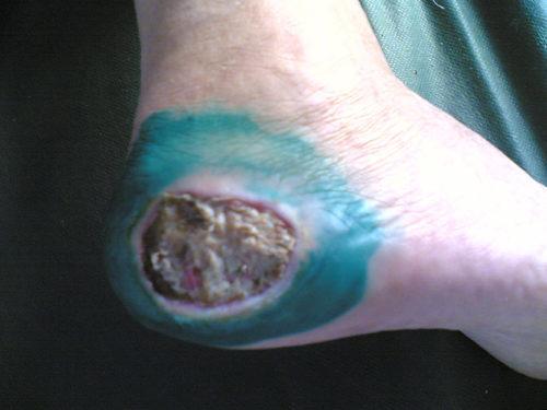 фото начальной стадии диабетической стопы