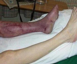 критическая ишемия нижних конечностей лечение