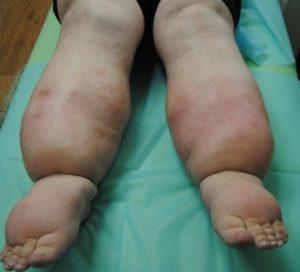 как лечат лимфостаз нижних конечностей