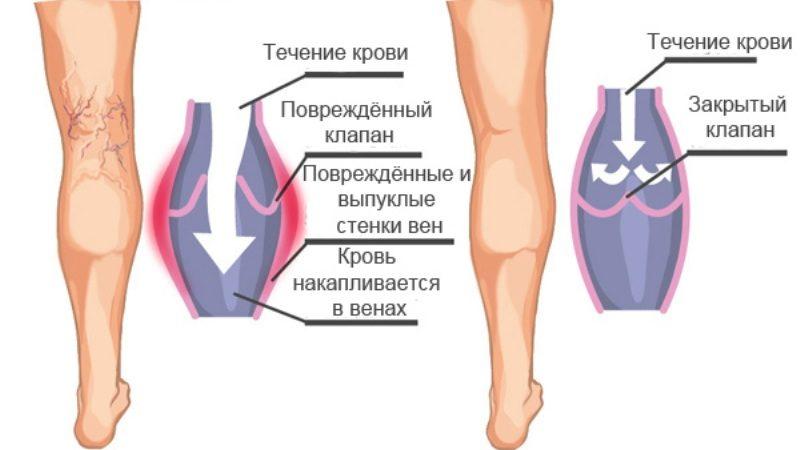 лечение варикоза вен содой