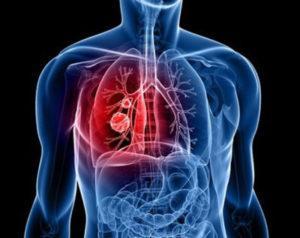 тромбоэмболия легочной артерии симптомы лечение