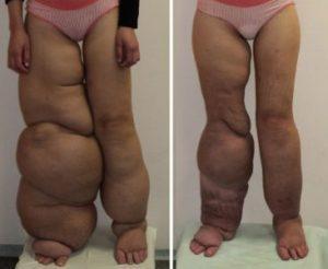 лимфостаз нижних конечностей лечение
