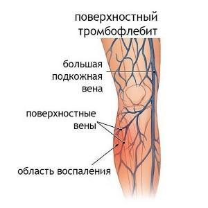 лечение острого тромбофлебита нижних конечностей