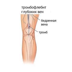 острый тромбофлебит поверхностных вен нижних конечностей