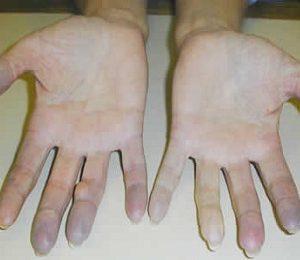 почему лопаются сосуды на руках и появляются синяки