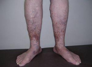 посттромбофлебитический синдром нижних конечностей