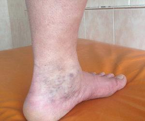 мкб 10 посттромбофлебитический синдром