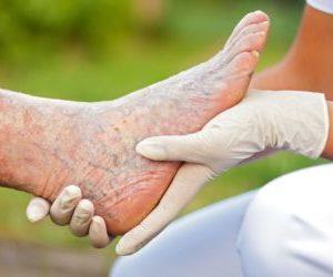 лекарства от тромбоза тромбофлебита нижних конечностей