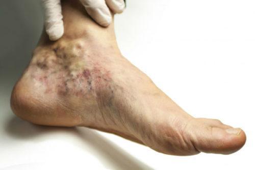 если тромб в ноге оторвался симптомы