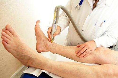 признаки тромба в ноге симптомы