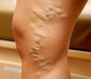 тромб в ноге симптомы и лечение