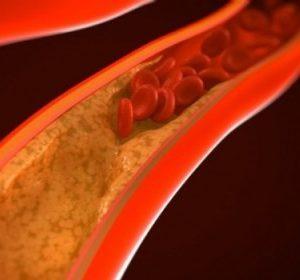 профилактика тромбозов и сосудистых заболеваний