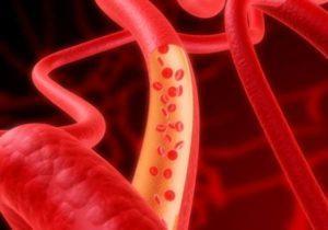 очистка сосудов и профилактика тромбообразования