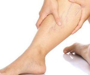 солевые повязки при варикозе отзывы