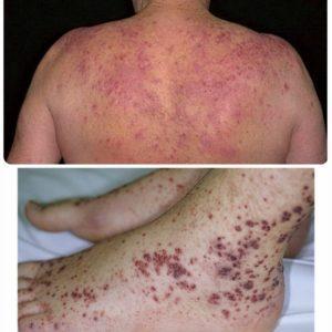 тромбоцитопения симптомы