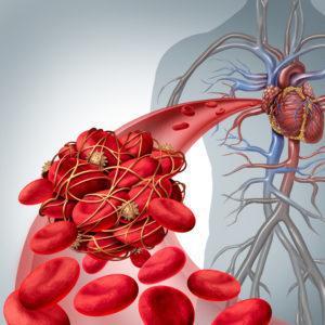 Тромболитики препараты список