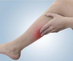 лечение тромбоз нижней полой вены