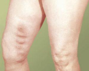 симптомы тромбоз нижней полой вены
