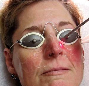 лечение лазером купероза на лице