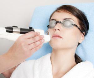 лазерное удаление купероза на лице отзывы