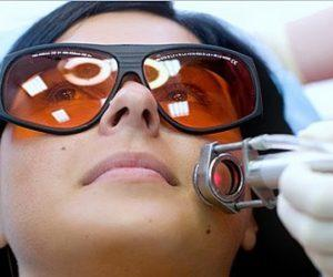 удаление купероза лазером на лице отзывы