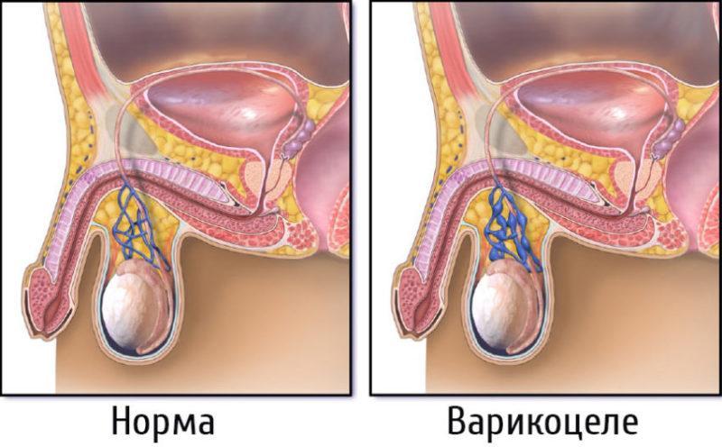 влияет ли на потенцию варикоцеле