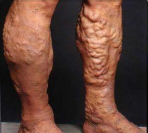 Силовые тренировки при варикозе ног, программа занятий, Лечение варикоза ног и сосудов