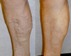 застой венозной крови в ногах